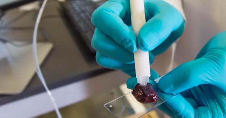 Cientistas criam 'caneta' que detecta câncer em 10 segundos
